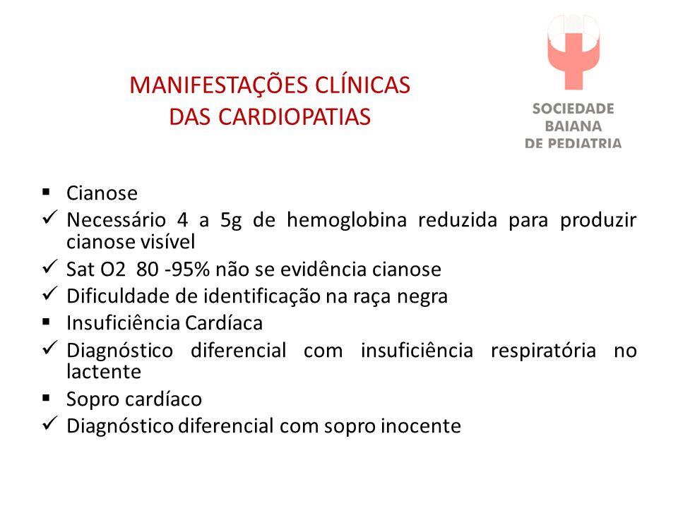 MANIFESTAÇÕES CLÍNICAS DAS CARDIOPATIAS Cianose Necessário 4 a 5g de hemoglobina reduzida para produzir cianose visível Sat O2 80 -95% não se evidênci