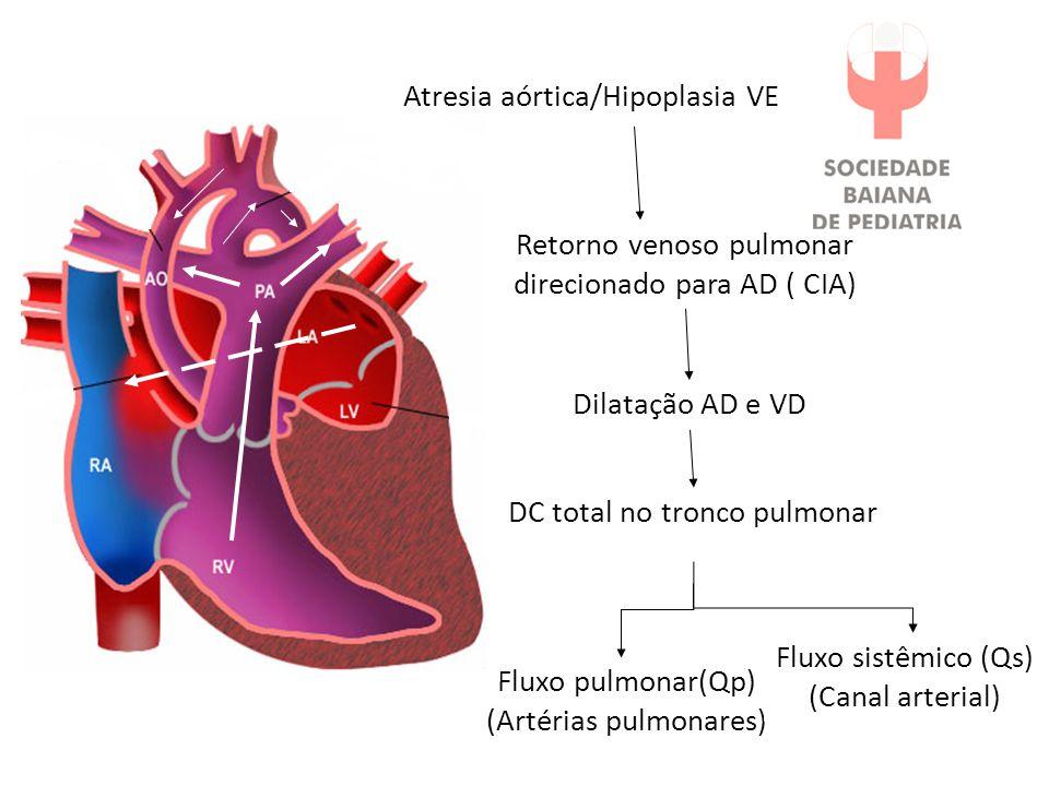Atresia aórtica/Hipoplasia VE Retorno venoso pulmonar direcionado para AD ( CIA) Dilatação AD e VD DC total no tronco pulmonar Fluxo pulmonar(Qp) (Artérias pulmonares) Fluxo sistêmico (Qs) (Canal arterial)