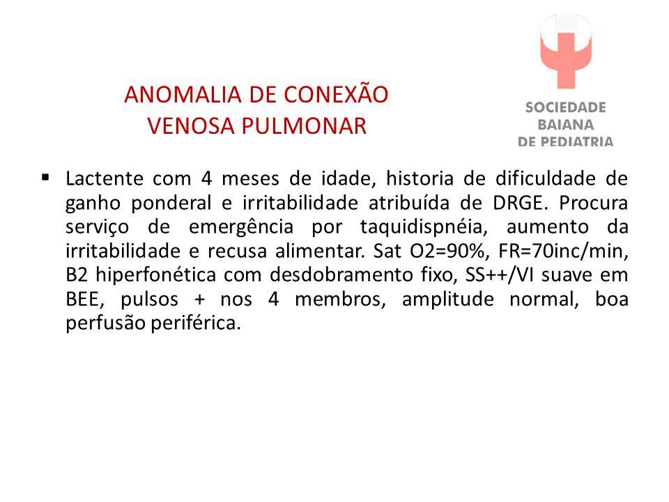 ANOMALIA DE CONEXÃO VENOSA PULMONAR Lactente com 4 meses de idade, historia de dificuldade de ganho ponderal e irritabilidade atribuída de DRGE. Procu
