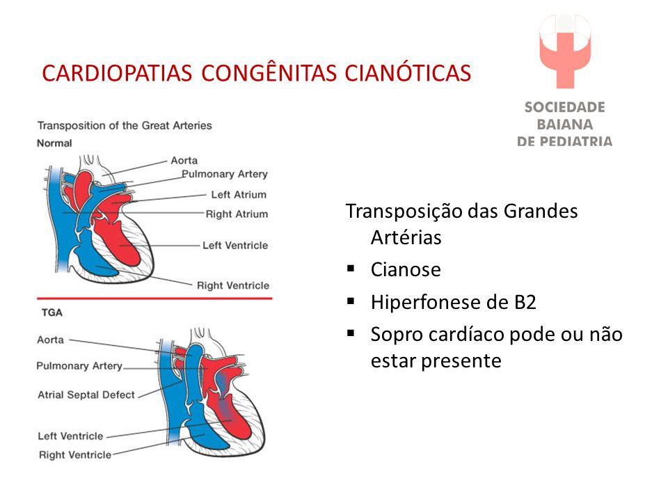 CARDIOPATIAS CONGÊNITAS CIANÓTICAS Transposição das Grandes Artérias Cianose Hiperfonese de B2 Sopro cardíaco pode ou não estar presente