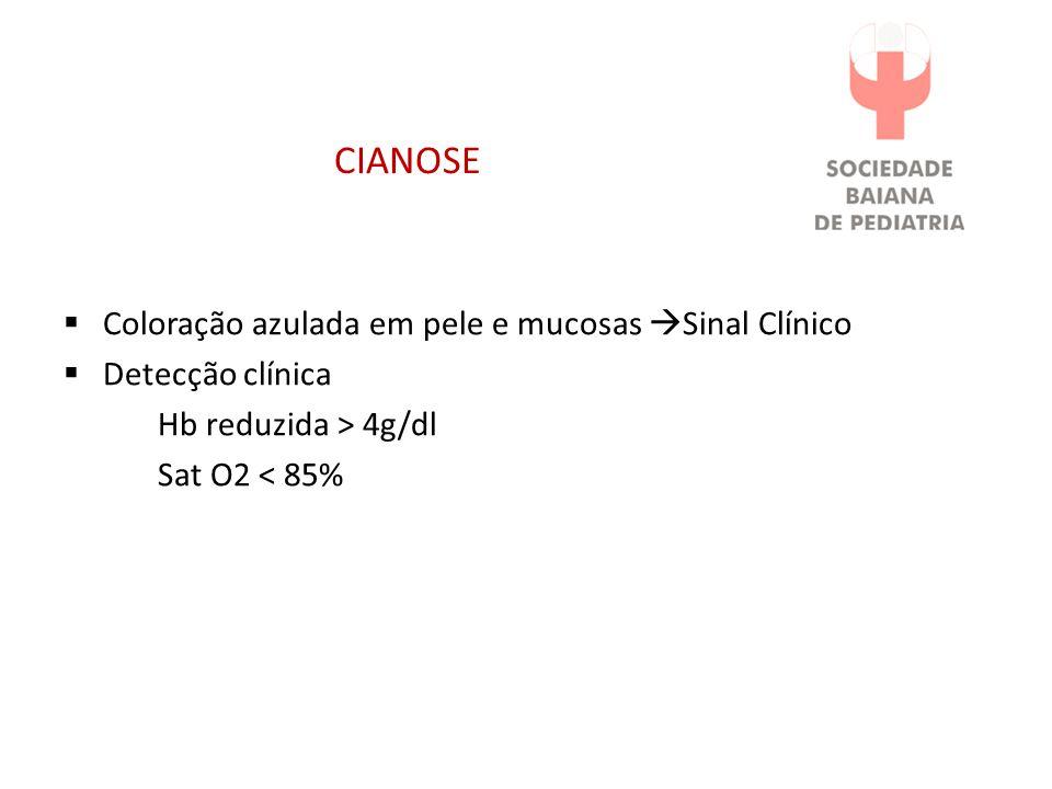 CIANOSE Coloração azulada em pele e mucosas Sinal Clínico Detecção clínica Hb reduzida > 4g/dl Sat O2 < 85%