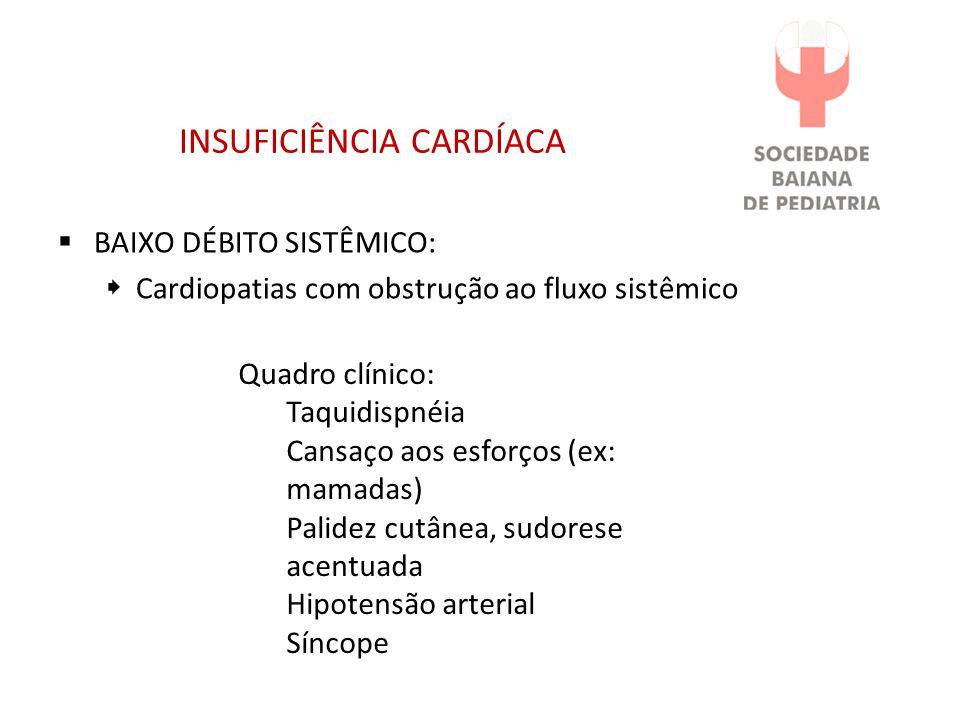 INSUFICIÊNCIA CARDÍACA BAIXO DÉBITO SISTÊMICO: Cardiopatias com obstrução ao fluxo sistêmico Quadro clínico: Taquidispnéia Cansaço aos esforços (ex: mamadas) Palidez cutânea, sudorese acentuada Hipotensão arterial Síncope