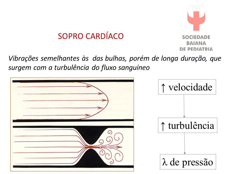 SOPRO CARDÍACO Vibrações semelhantes às das bulhas, porém de longa duração, que surgem com a turbulência do fluxo sanguíneo velocidade turbulência λ de pressão