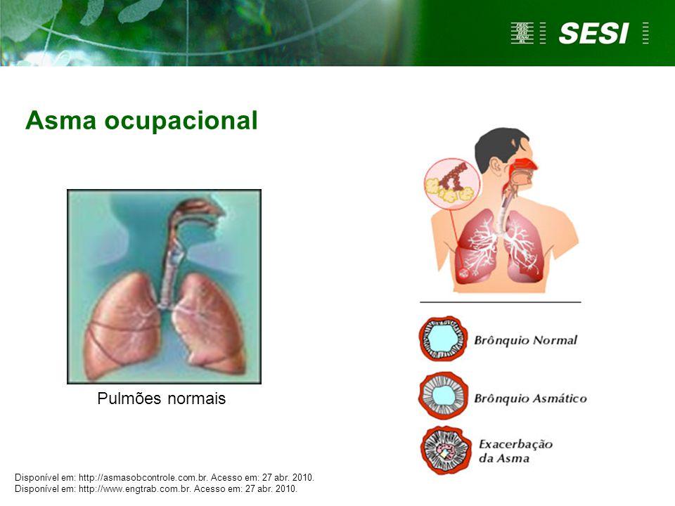 Asma ocupacional Pulmões normais Disponível em: http://asmasobcontrole.com.br. Acesso em: 27 abr. 2010. Disponível em: http://www.engtrab.com.br. Aces
