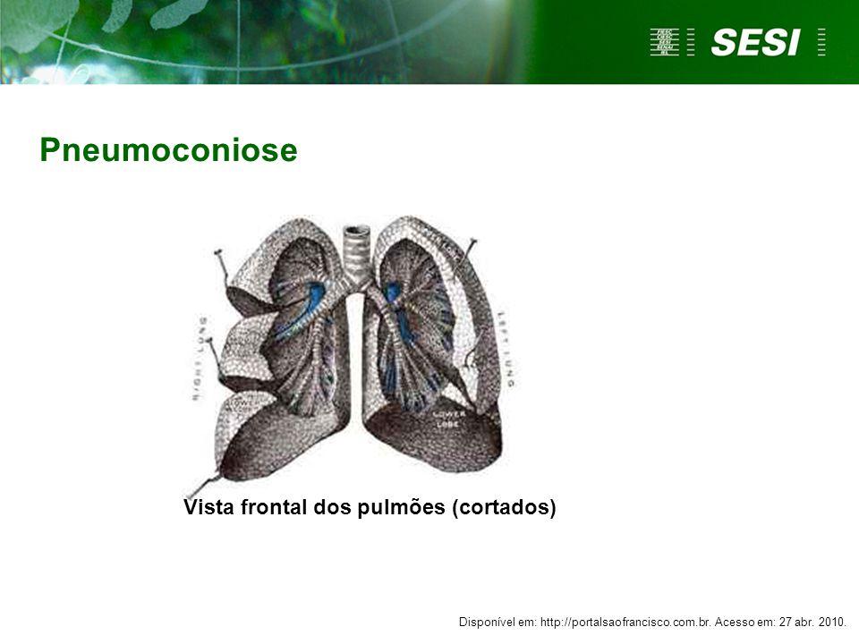 Pneumoconiose Vista frontal dos pulmões (cortados) Disponível em: http://portalsaofrancisco.com.br. Acesso em: 27 abr. 2010.