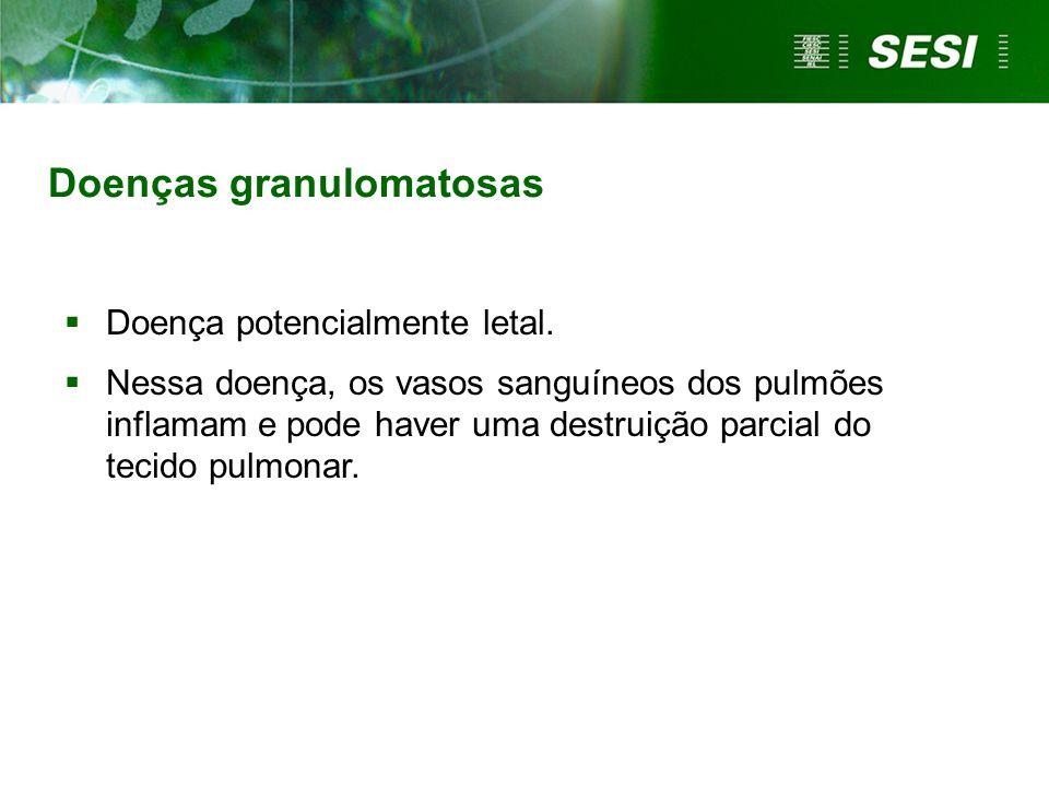 Doenças granulomatosas Doença potencialmente letal. Nessa doença, os vasos sanguíneos dos pulmões inflamam e pode haver uma destruição parcial do teci