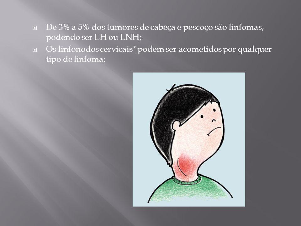 De 3% a 5% dos tumores de cabeça e pescoço são linfomas, podendo ser LH ou LNH; Os linfonodos cervicais* podem ser acometidos por qualquer tipo de lin