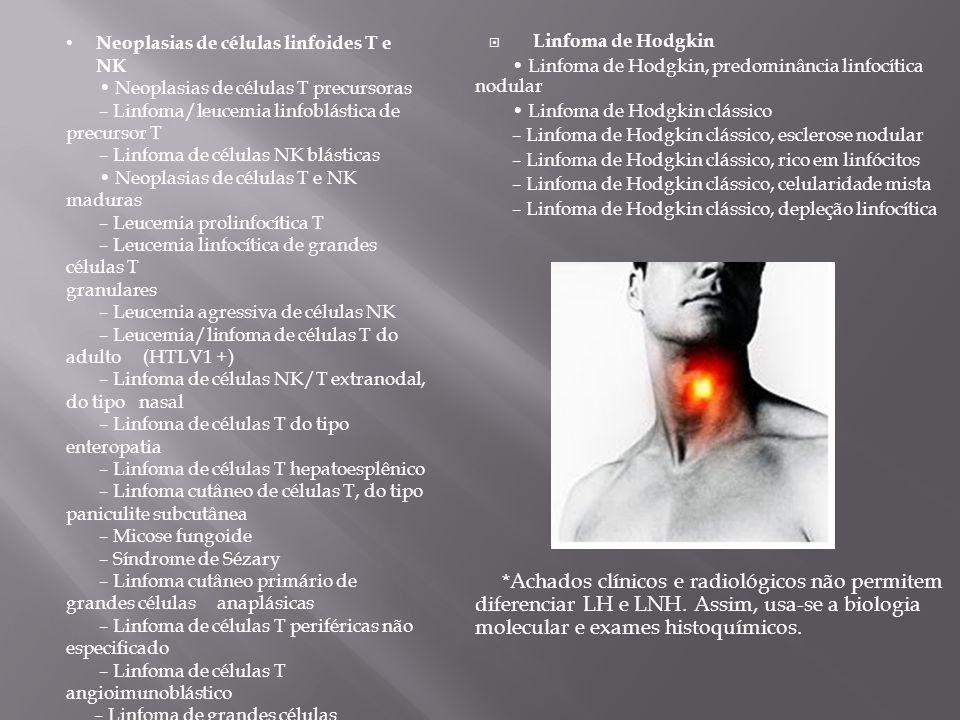 Linfoma de Hodgkin Linfoma de Hodgkin, predominância linfocítica nodular Linfoma de Hodgkin clássico – Linfoma de Hodgkin clássico, esclerose nodular