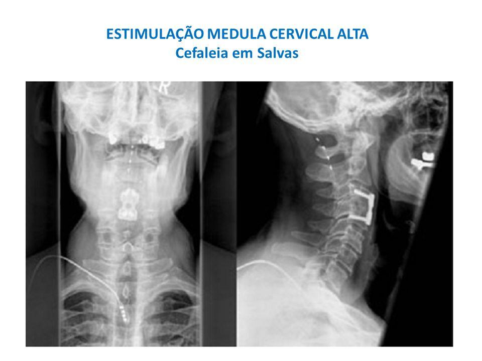 Cefaleias trigêmino-autonômicas Estimulações periféricas