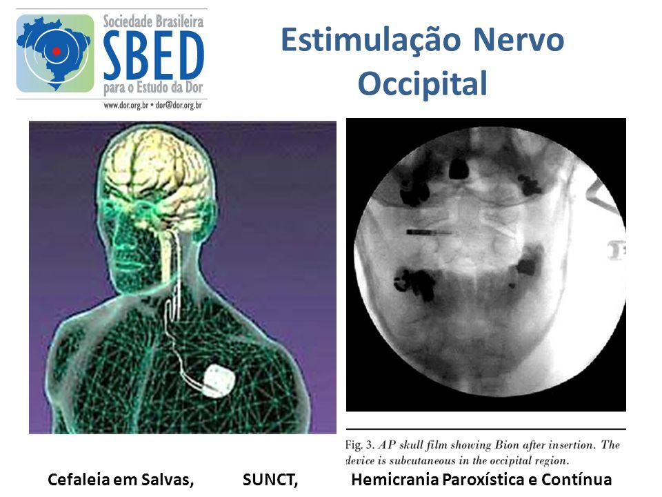 Estimulação Nervo Occipital Cefaleia em Salvas, SUNCT, Hemicrania Paroxística e Contínua