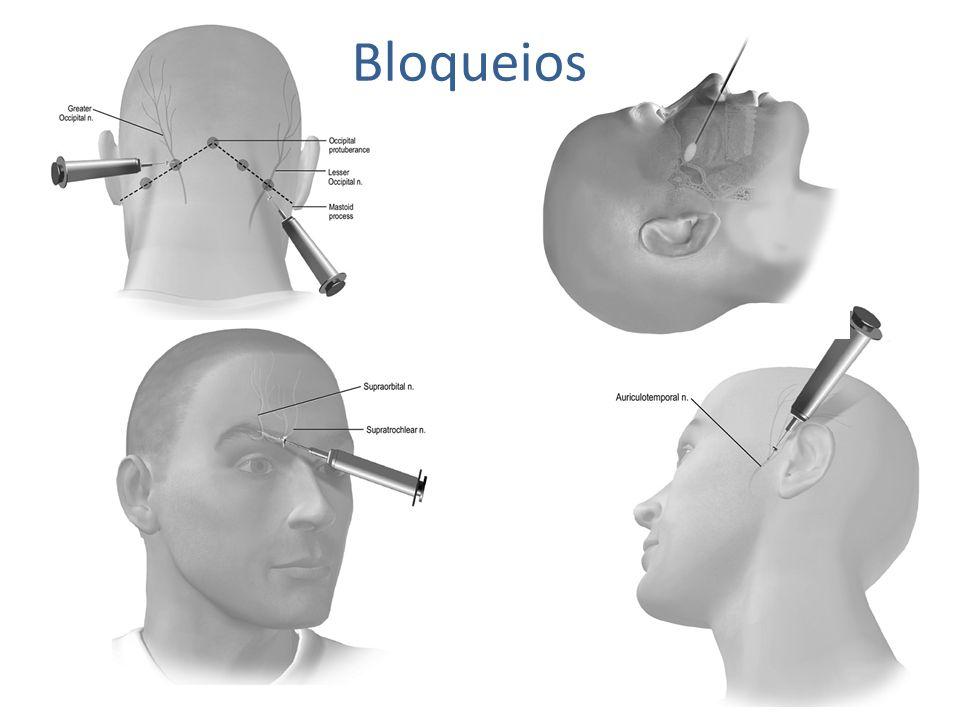 Cefaleia em Salvas Crônica Bloqueio