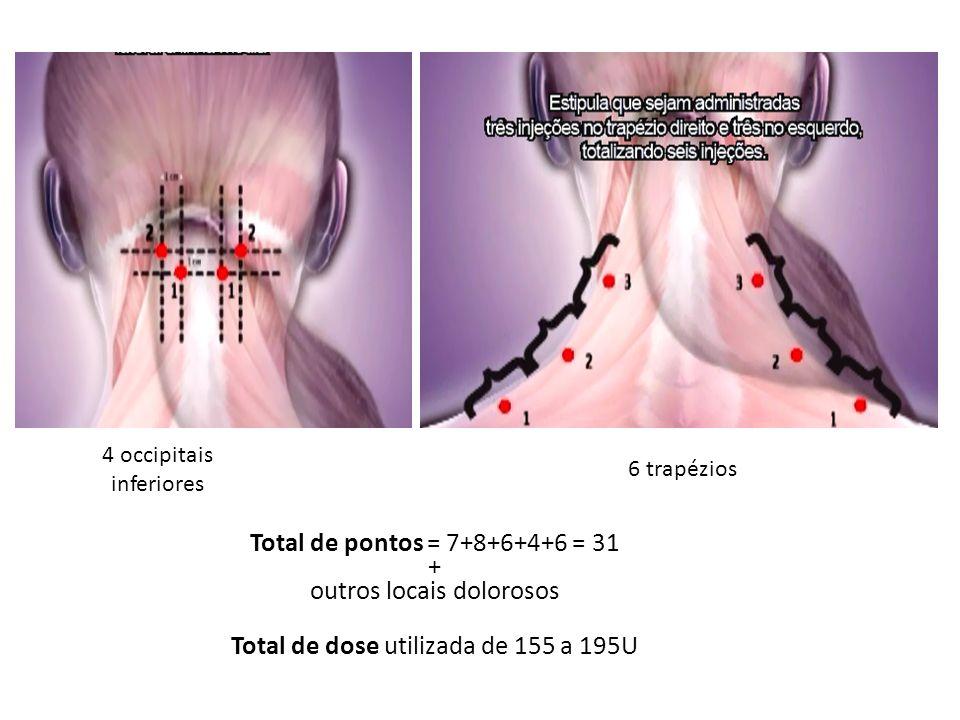 AVALIAÇÃO DA QUALIDADE DE VIDA Headache Impact Test (HIT)-6 score, Migraine-Specic Quality of Life questionnaire (MSQ v2.1)