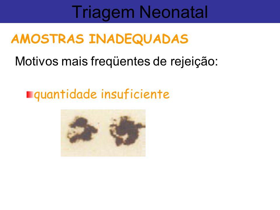 Motivos mais freqüentes de rejeição: Triagem Neonatal AMOSTRAS INADEQUADAS quantidade insuficiente