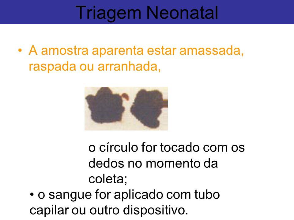 Triagem Neonatal o círculo for tocado com os dedos no momento da coleta; o sangue for aplicado com tubo capilar ou outro dispositivo. A amostra aparen