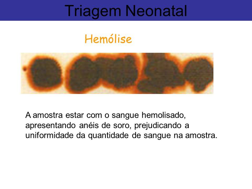 Hemólise Triagem Neonatal A amostra estar com o sangue hemolisado, apresentando anéis de soro, prejudicando a uniformidade da quantidade de sangue na