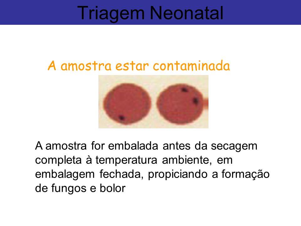 A amostra estar contaminada Triagem Neonatal A amostra for embalada antes da secagem completa à temperatura ambiente, em embalagem fechada, propiciand