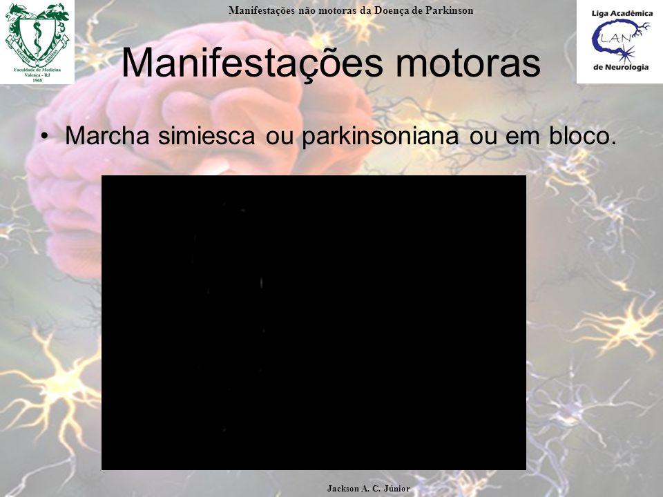 Manifestações motoras Marcha simiesca ou parkinsoniana ou em bloco.