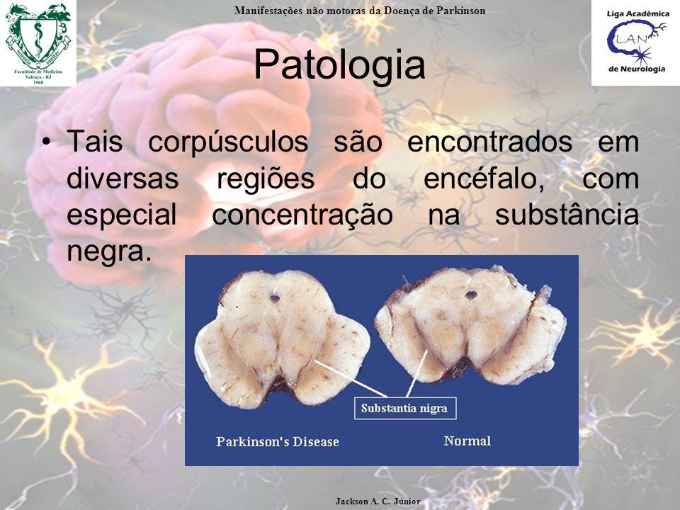 Patologia Tais corpúsculos são encontrados em diversas regiões do encéfalo, com especial concentração na substância negra.