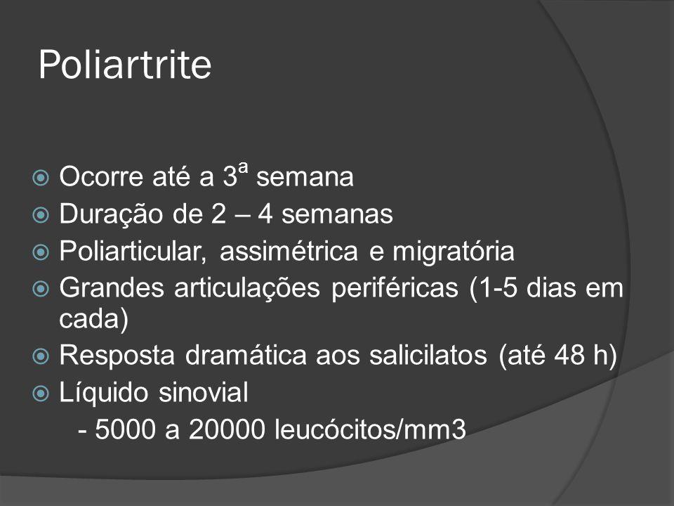 Poliartrite Ocorre até a 3 a semana Duração de 2 – 4 semanas Poliarticular, assimétrica e migratória Grandes articulações periféricas (1-5 dias em cad