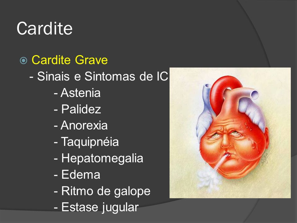 Cardite Cardite Grave - Sinais e Sintomas de IC - Astenia - Palidez - Anorexia - Taquipnéia - Hepatomegalia - Edema - Ritmo de galope - Estase jugular