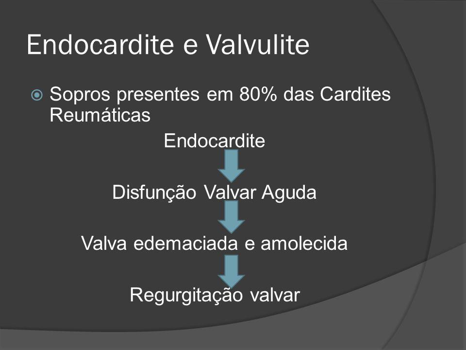 Endocardite e Valvulite Sopros presentes em 80% das Cardites Reumáticas Endocardite Disfunção Valvar Aguda Valva edemaciada e amolecida Regurgitação v