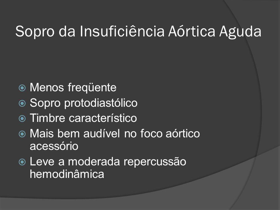 Sopro da Insuficiência Aórtica Aguda Menos freqüente Sopro protodiastólico Timbre característico Mais bem audível no foco aórtico acessório Leve a mod