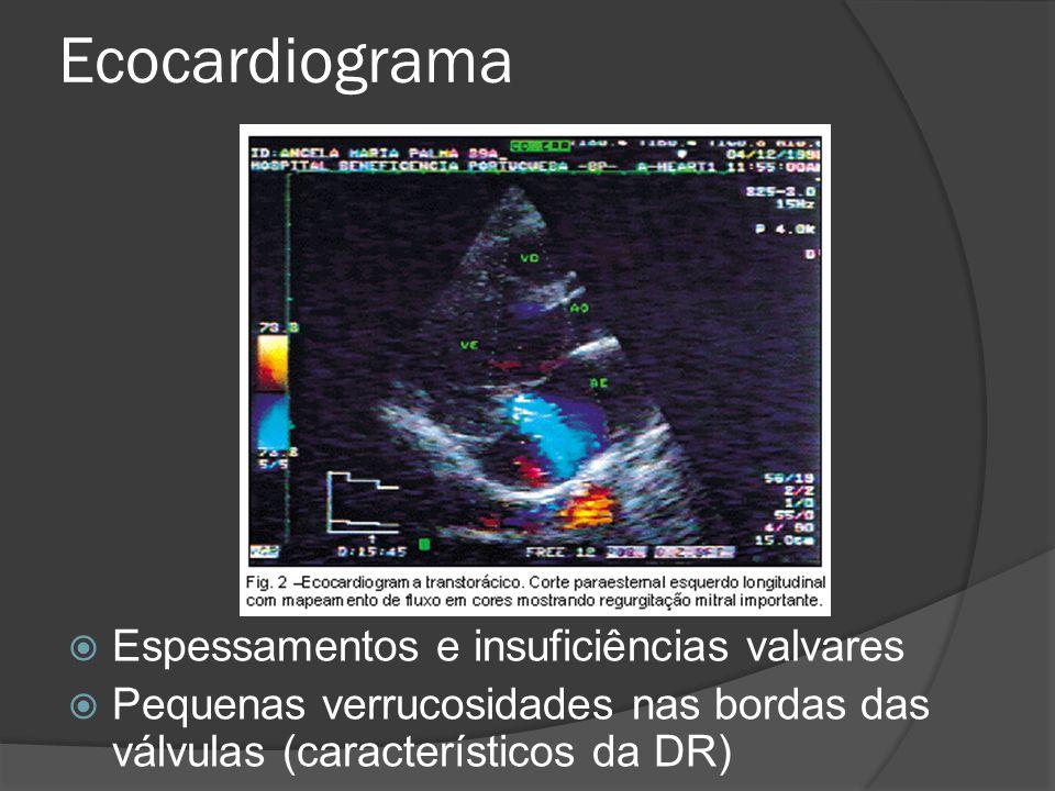 Ecocardiograma Espessamentos e insuficiências valvares Pequenas verrucosidades nas bordas das válvulas (característicos da DR)