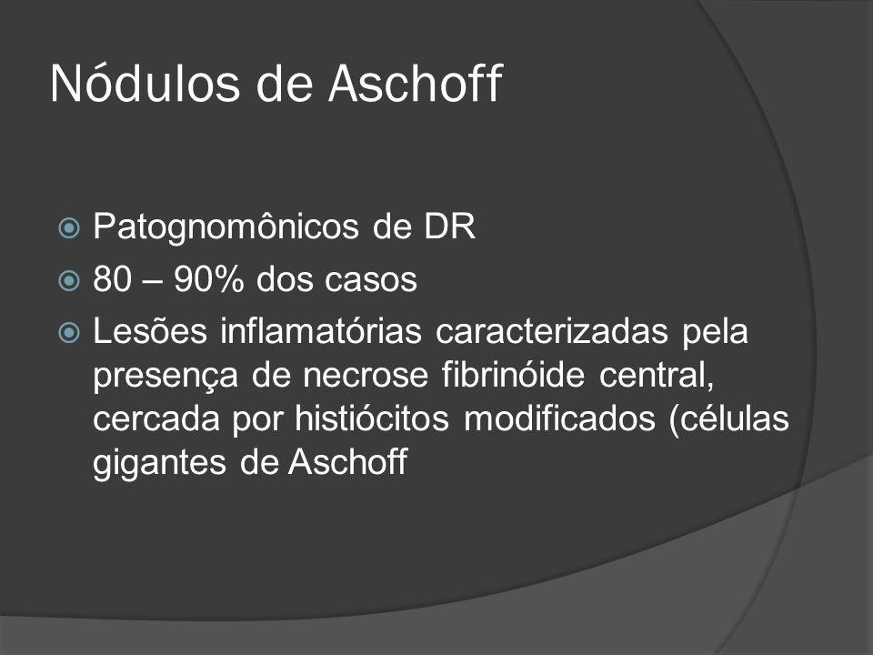 Nódulos de Aschoff Patognomônicos de DR 80 – 90% dos casos Lesões inflamatórias caracterizadas pela presença de necrose fibrinóide central, cercada po