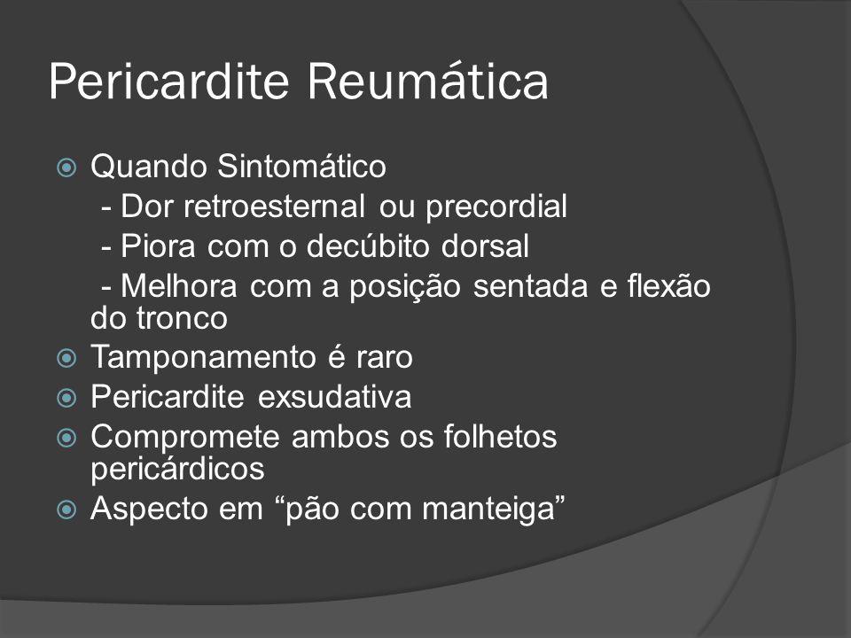 Pericardite Reumática Quando Sintomático - Dor retroesternal ou precordial - Piora com o decúbito dorsal - Melhora com a posição sentada e flexão do t