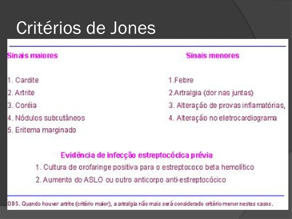 Critérios de Jones