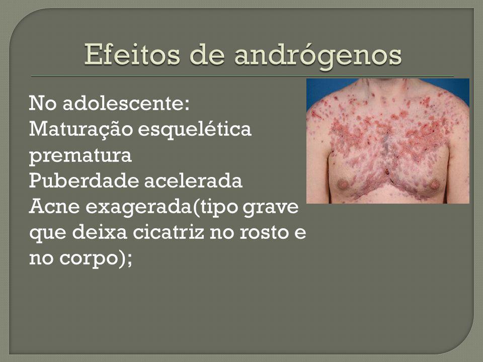 No adolescente: Maturação esquelética prematura Puberdade acelerada Acne exagerada(tipo grave que deixa cicatriz no rosto e no corpo);