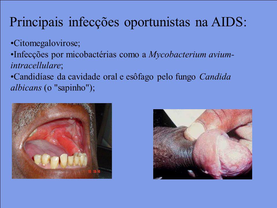 Citomegalovirose; Infecções por micobactérias como a Mycobacterium avium- intracellulare; Candidíase da cavidade oral e esôfago pelo fungo Candida albicans (o sapinho ); Principais infecções oportunistas na AIDS:
