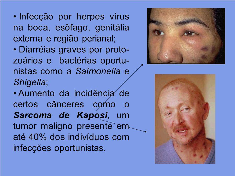 Infecção por herpes vírus na boca, esôfago, genitália externa e região perianal; Diarréias graves por proto- zoários e bactérias oportu- nistas como a