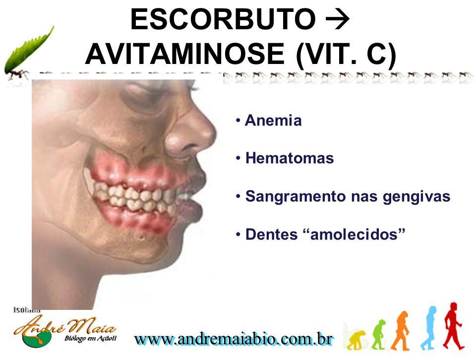 www.andremaiabio.com.brwww.andremaiabio.com.br ESCORBUTO AVITAMINOSE (VIT. C) Anemia Hematomas Sangramento nas gengivas Dentes amolecidos