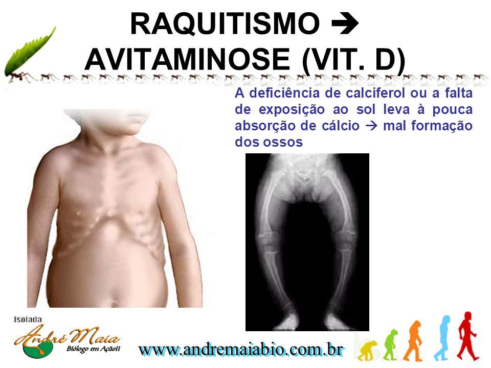 www.andremaiabio.com.brwww.andremaiabio.com.br RAQUITISMO AVITAMINOSE (VIT. D) A deficiência de calciferol ou a falta de exposição ao sol leva à pouca