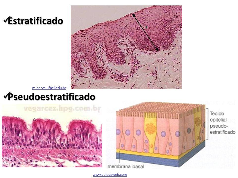 Estratificado Estratificado Pseudoestratificado Pseudoestratificado minerva.ufpel.edu.br www.coladaweb.com