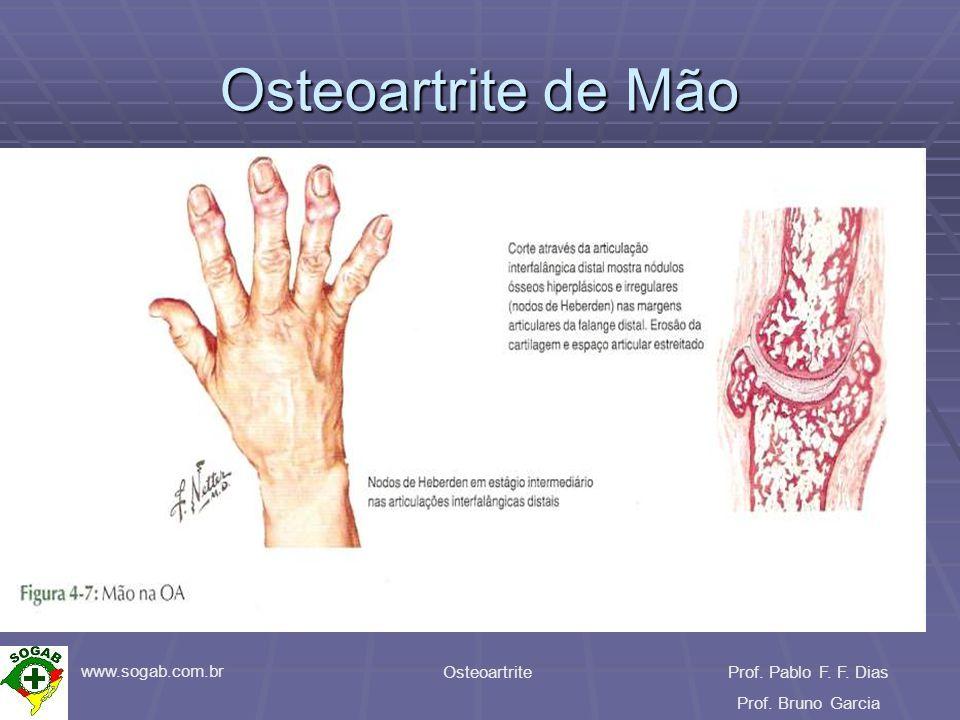 www.sogab.com.br OsteoartriteProf. Pablo F. F. Dias Prof. Bruno Garcia Osteoartrite de Mão