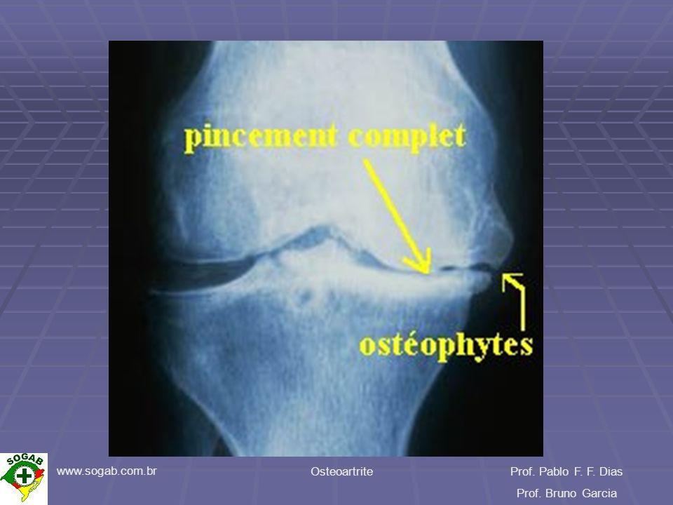 www.sogab.com.br OsteoartriteProf. Pablo F. F. Dias Prof. Bruno Garcia