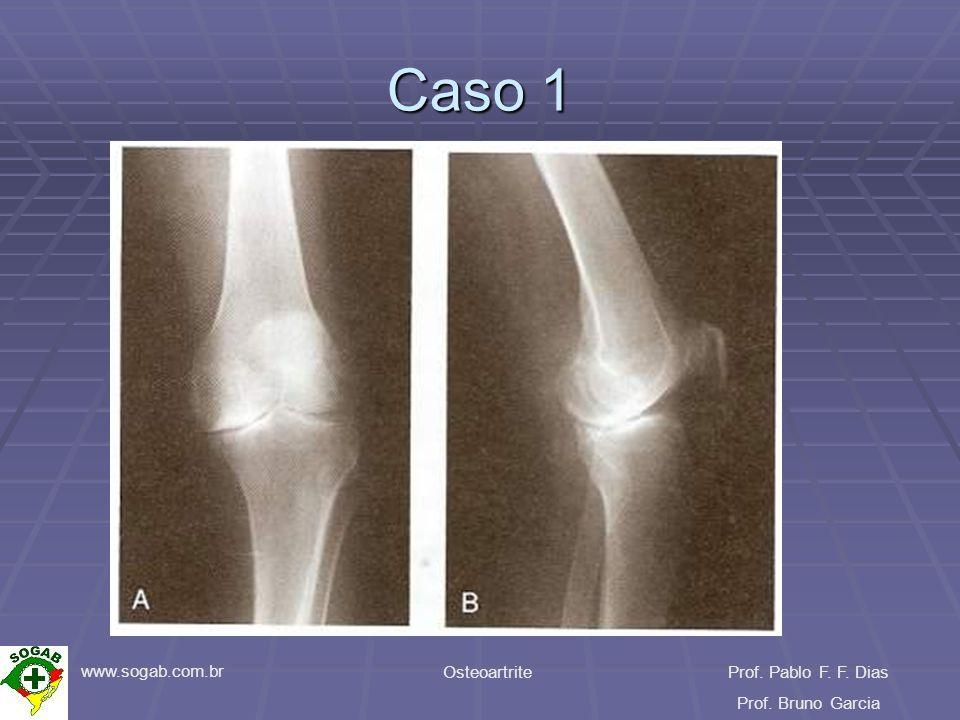 www.sogab.com.br OsteoartriteProf. Pablo F. F. Dias Prof. Bruno Garcia Caso 1