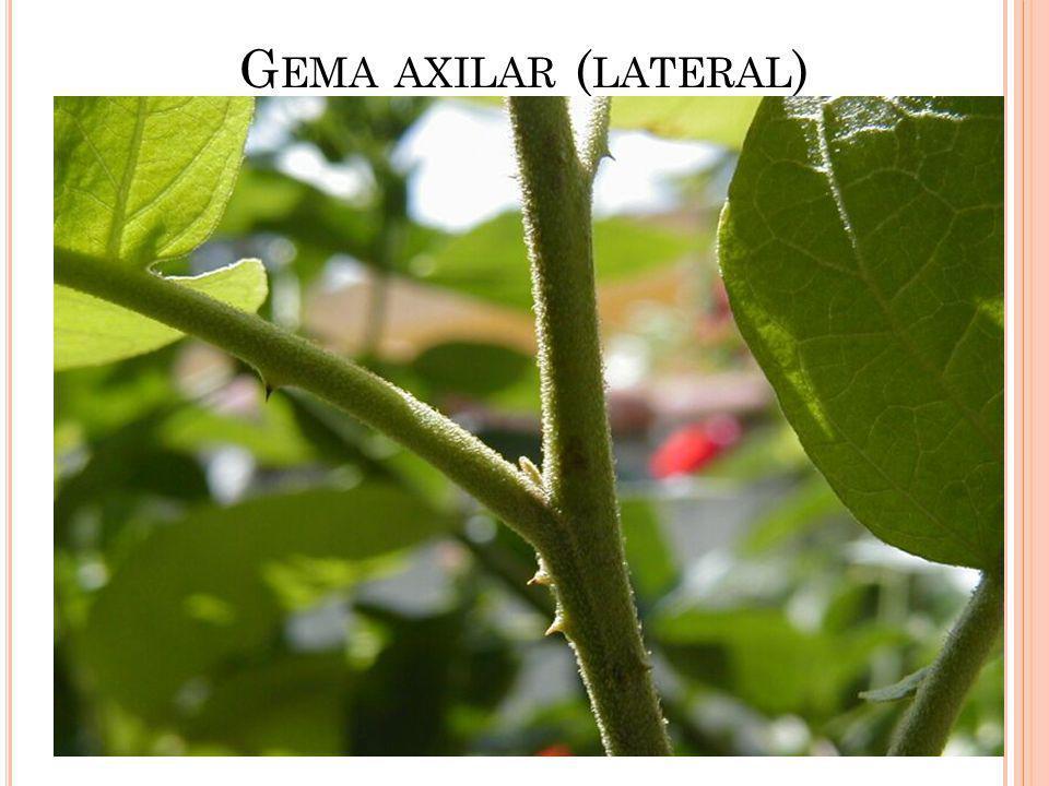 G EMA AXILAR ( LATERAL )