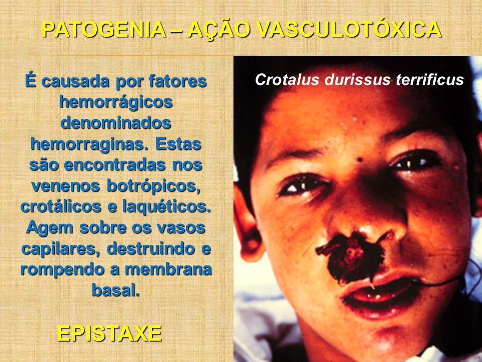 PATOGENIA – AÇÃO VASCULOTÓXICA É causada por fatores hemorrágicos denominados hemorraginas. Estas são encontradas nos venenos botrópicos, crotálicos e