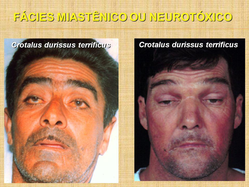 FÁCIES MIASTÊNICO OU NEUROTÓXICO Crotalus durissus terrificus