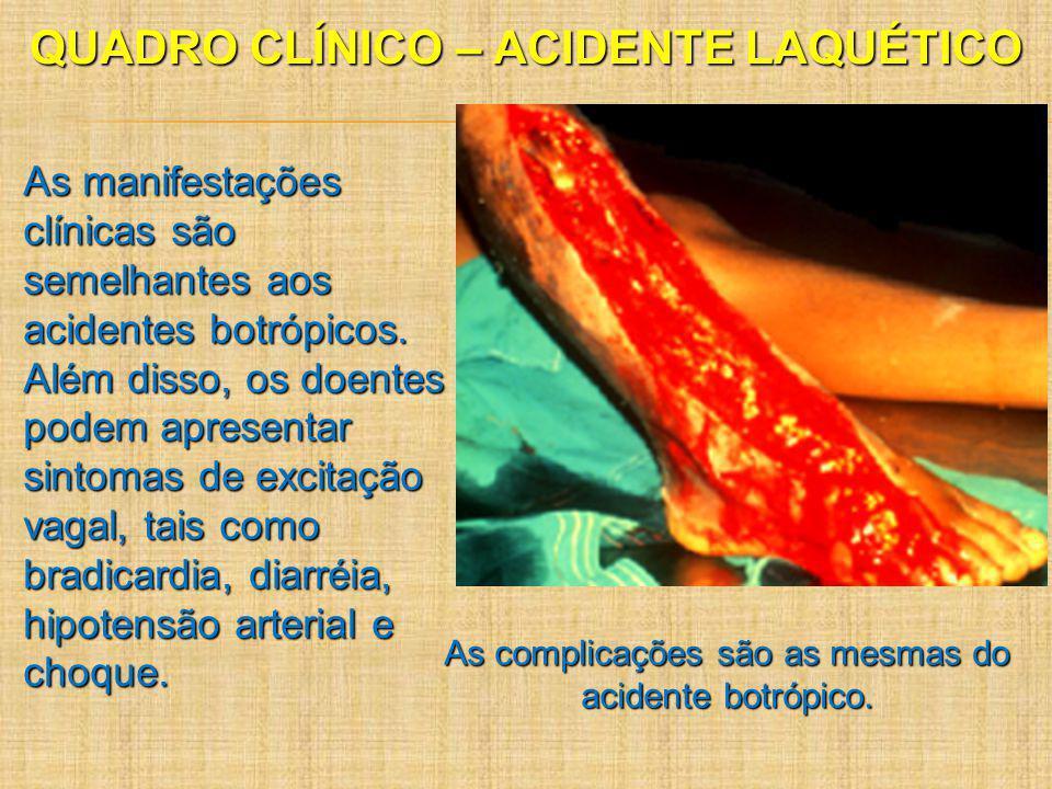 QUADRO CLÍNICO – ACIDENTE LAQUÉTICO As manifestações clínicas são semelhantes aos acidentes botrópicos. Além disso, os doentes podem apresentar sintom
