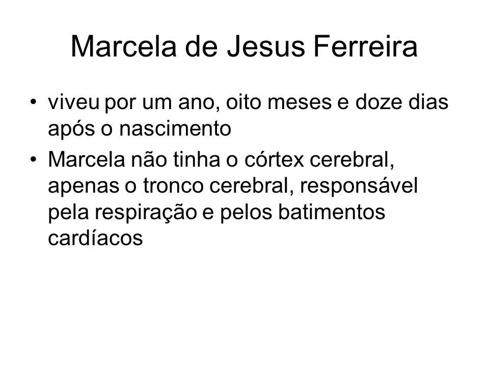 Marcela de Jesus Ferreira viveu por um ano, oito meses e doze dias após o nascimento Marcela não tinha o córtex cerebral, apenas o tronco cerebral, re