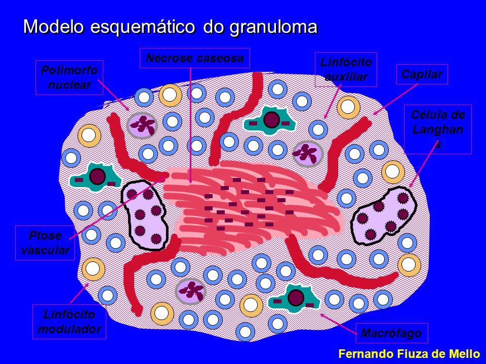 Modelo esquemático do granuloma Necrose caseosa Capilar Ptose vascular Macrófago Célula de Langhan s Linfócito auxiliar Polimorfo nuclear Linfócito modulador Fernando Fiuza de Mello