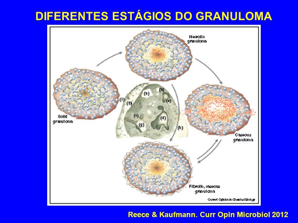 DIFERENTES ESTÁGIOS DO GRANULOMA Reece & Kaufmann. Curr Opin Microbiol 2012