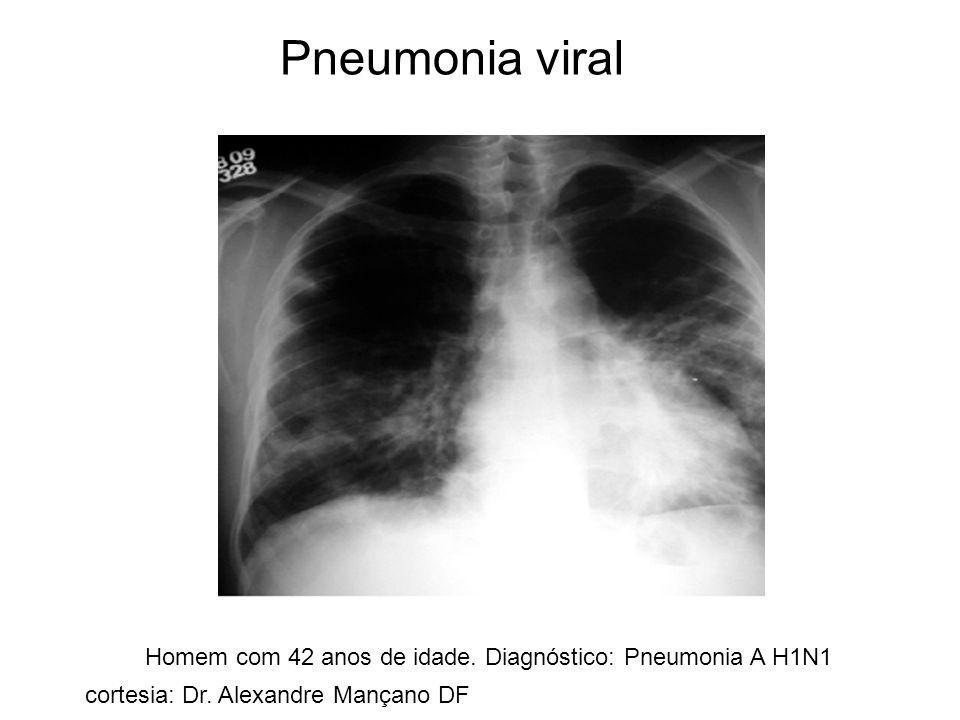 Pneumonia viral Homem com 42 anos de idade. Diagnóstico: Pneumonia A H1N1 cortesia: Dr. Alexandre Mançano DF