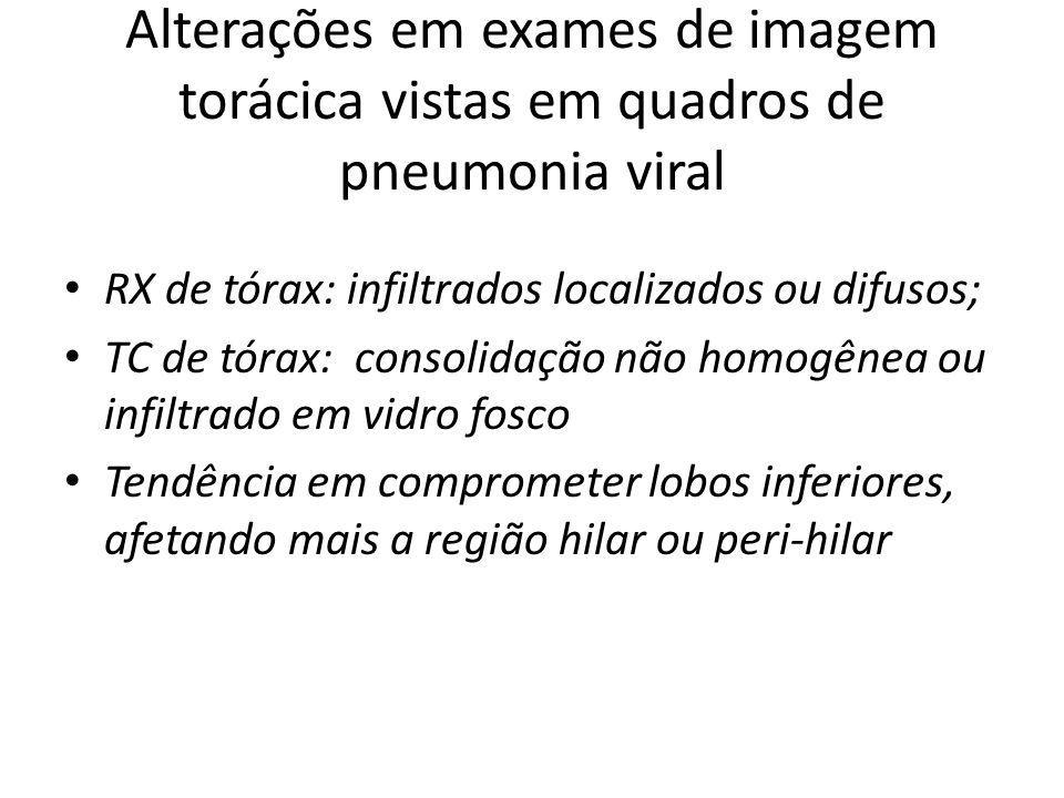 Alterações em exames de imagem torácica vistas em quadros de pneumonia viral RX de tórax: infiltrados localizados ou difusos; TC de tórax: consolidaçã