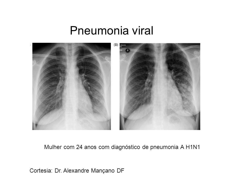 Pneumonia viral Mulher com 24 anos com diagnóstico de pneumonia A H1N1 Cortesia: Dr. Alexandre Mançano DF
