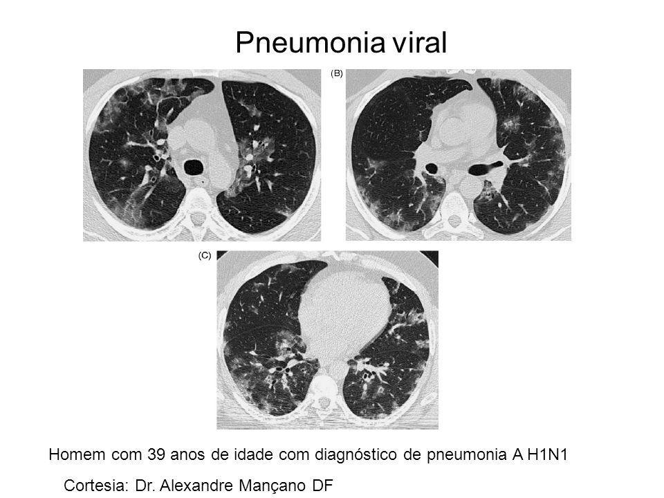 Pneumonia viral Homem com 39 anos de idade com diagnóstico de pneumonia A H1N1 Cortesia: Dr. Alexandre Mançano DF